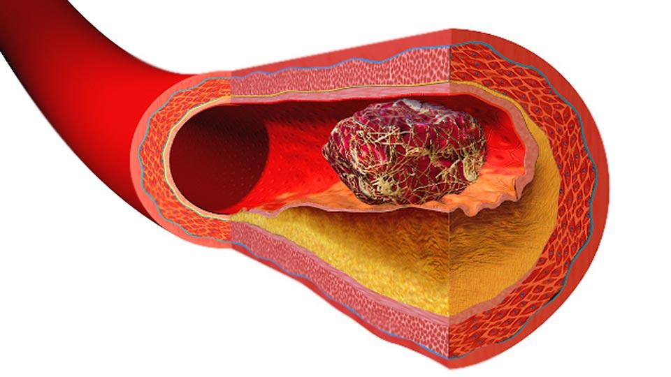 Thrombose in einem venösem Gefäß (Computerdarstellung)