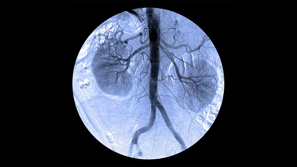 Nierenkrebs: Therapiemöglichkeiten und die medizinischen Hintergründe.