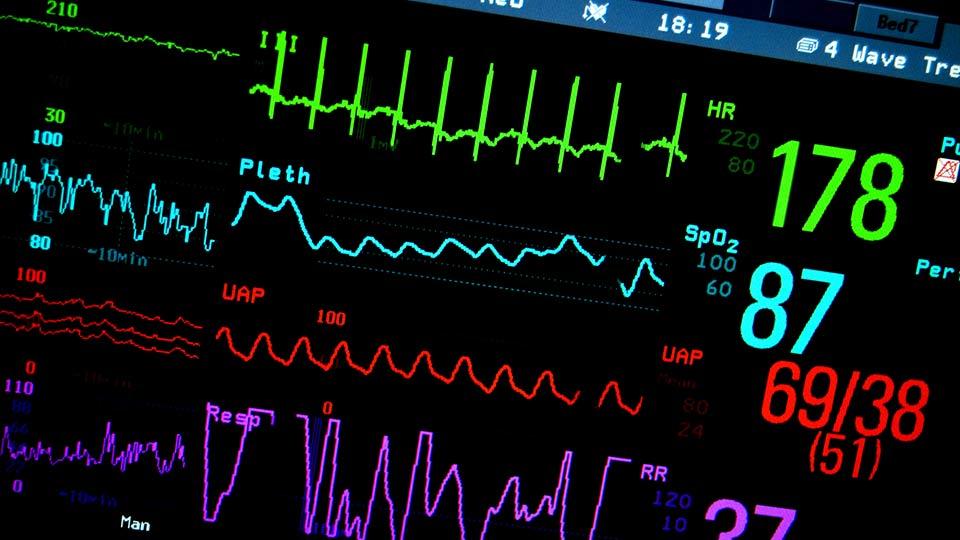Monitoring Herzstillstand