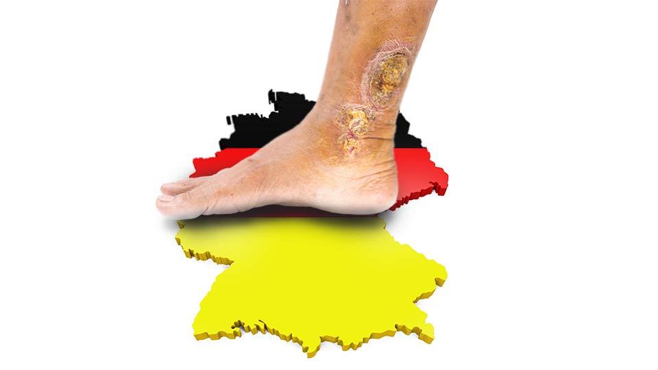 Versorgungsstand von Menschen mit Ulcus cruris venosum in Deutschland