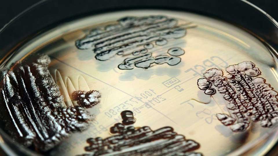 Wie kommen gefürchtete multiresistente Bakterien ins Krankenhaus?