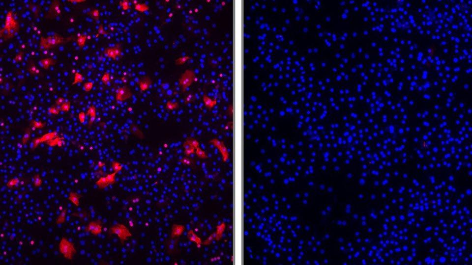 Forscher entwickeln neuartiges Arzneimittel gegen Hepatitis B und D