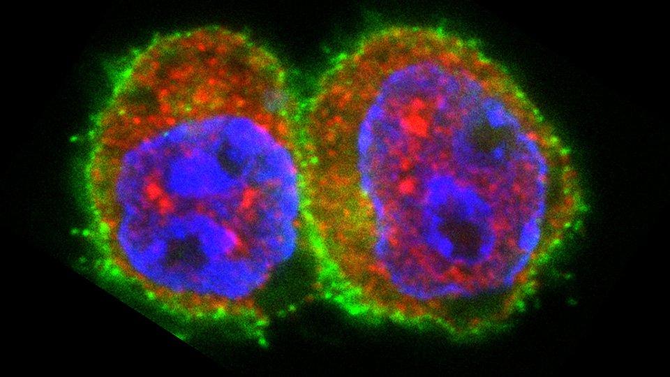 Wissenschaftler haben einen Mechanismus der Autoimmunreaktion bei Diabetes-Typ-1 entdeckt.