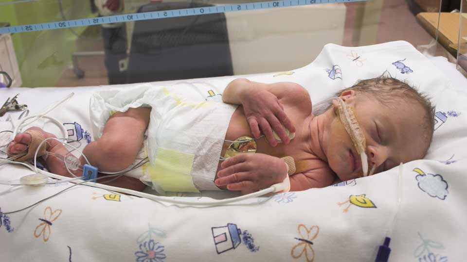 Säugling bekam Digitalis in achtfach höherer Dosis