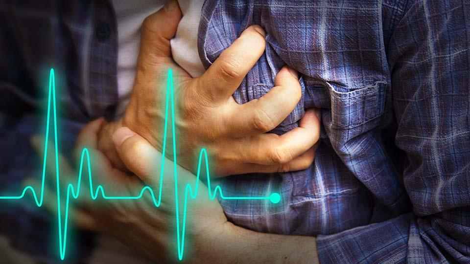 Myokardinfarkt