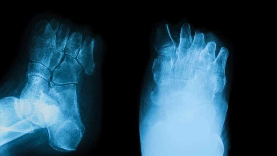 Röntgendarstellung von Fußamputationen aufgrund Diabetischem Fußsyndrom.