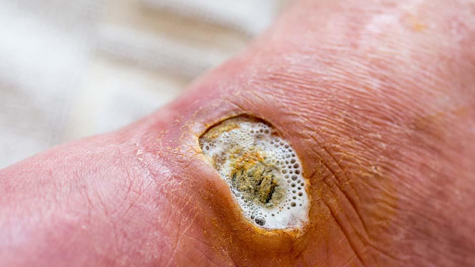 Diabetischer Fuß.