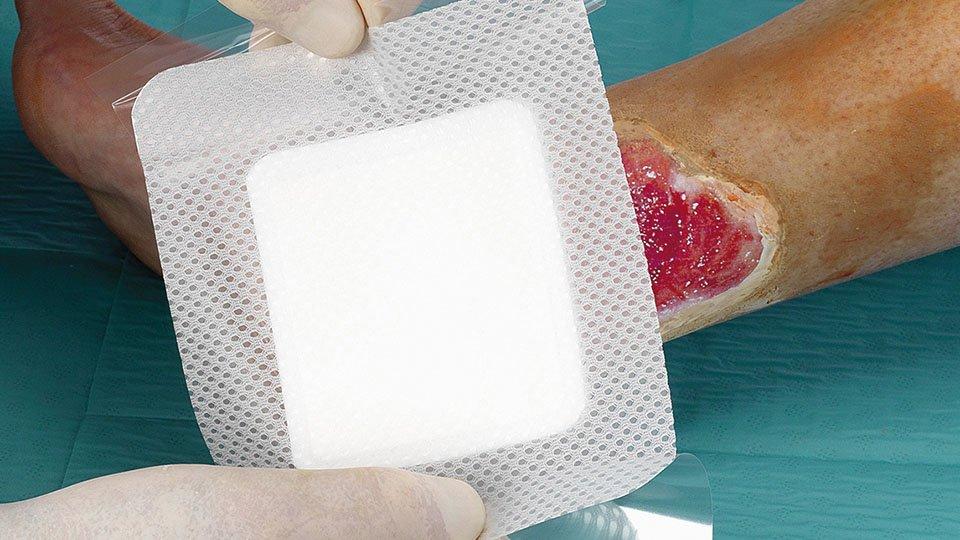 Die Wundauflage kann phasengerecht von Beginn der Therapie bis zur Abheilung der Wunde eingesetzt werden.