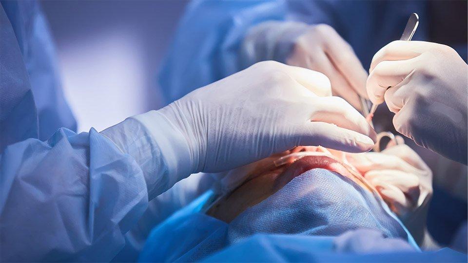 Risikoaufklärung in der Augenchirurgie. Katarktoperation am Auge.