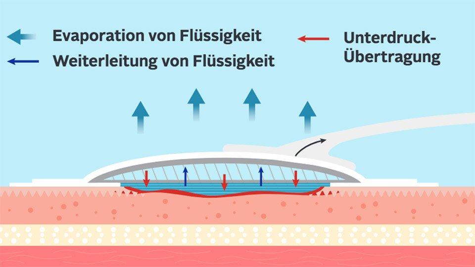Wundverbände mit der Hydrofiber®-Technologie in Kombination mit dem Avelle™-System für die Unterdruck-Therapie sorgen für ein optimales Flüssigkeitsmanagement und leiten den Unterdruck fokussiert in das Wundbett.