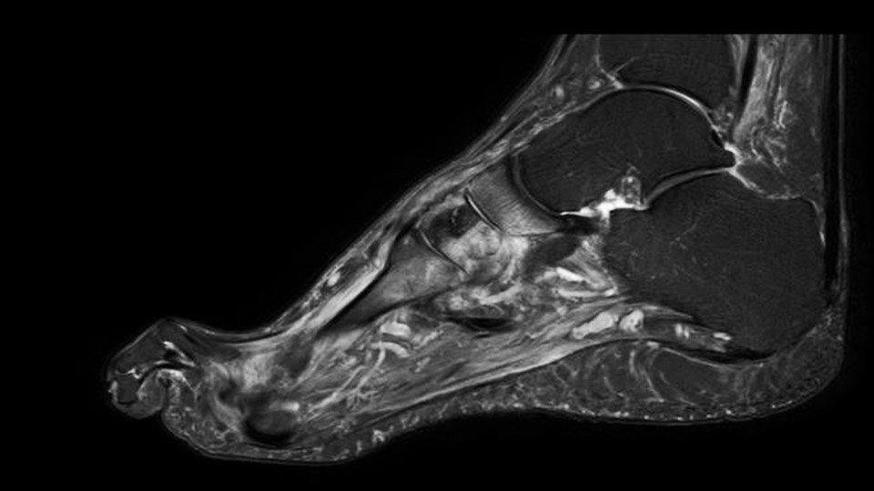 Charcotfuß im Frühstadium mit Knochenmarködem in mehreren Mittelfußknochen (MTK II, Os Cuneiforme II und Naviculare)