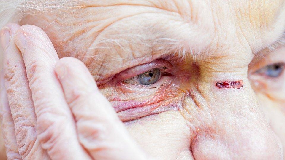 Verletzung an Auge und Nase einer Seniorin. (Symbolbild)