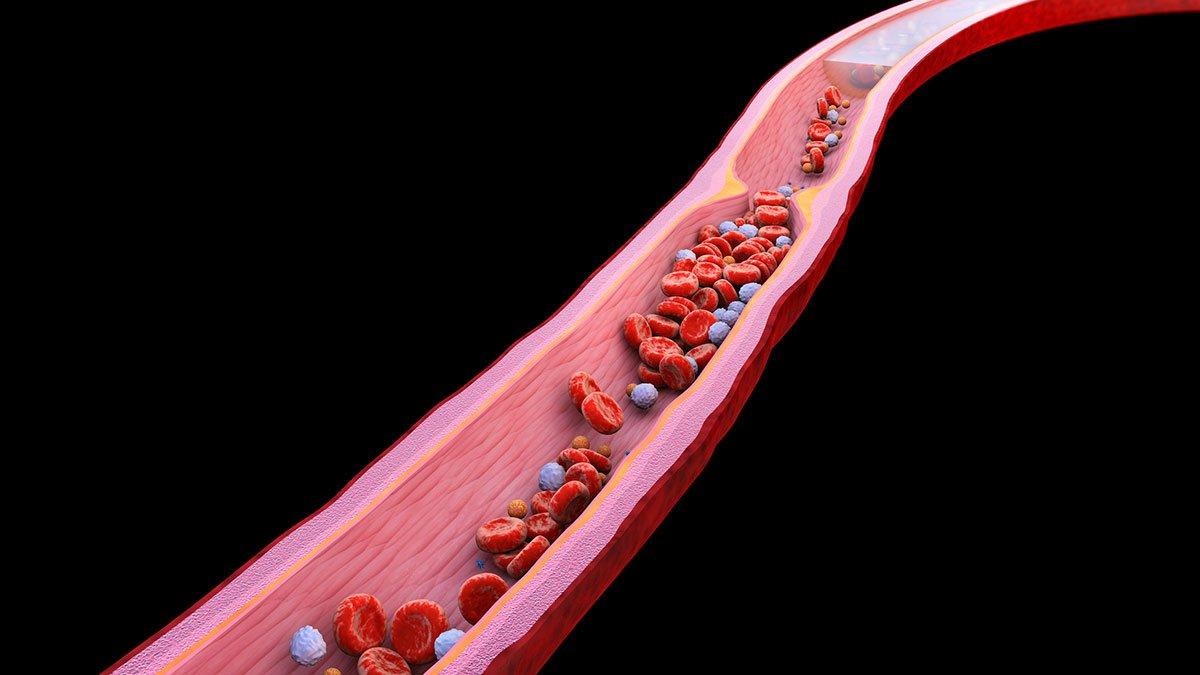 Studien beschäftigen sich mit den Risikofaktoren für thromboembolische Ereignisse  von COVID-19.