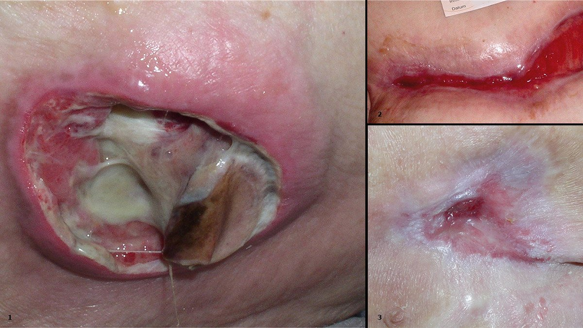 1: Wunde in der Reinigungsphase 2: Wunde in der Granulationsphase 3: Wunde in der Epitelisierungsphase