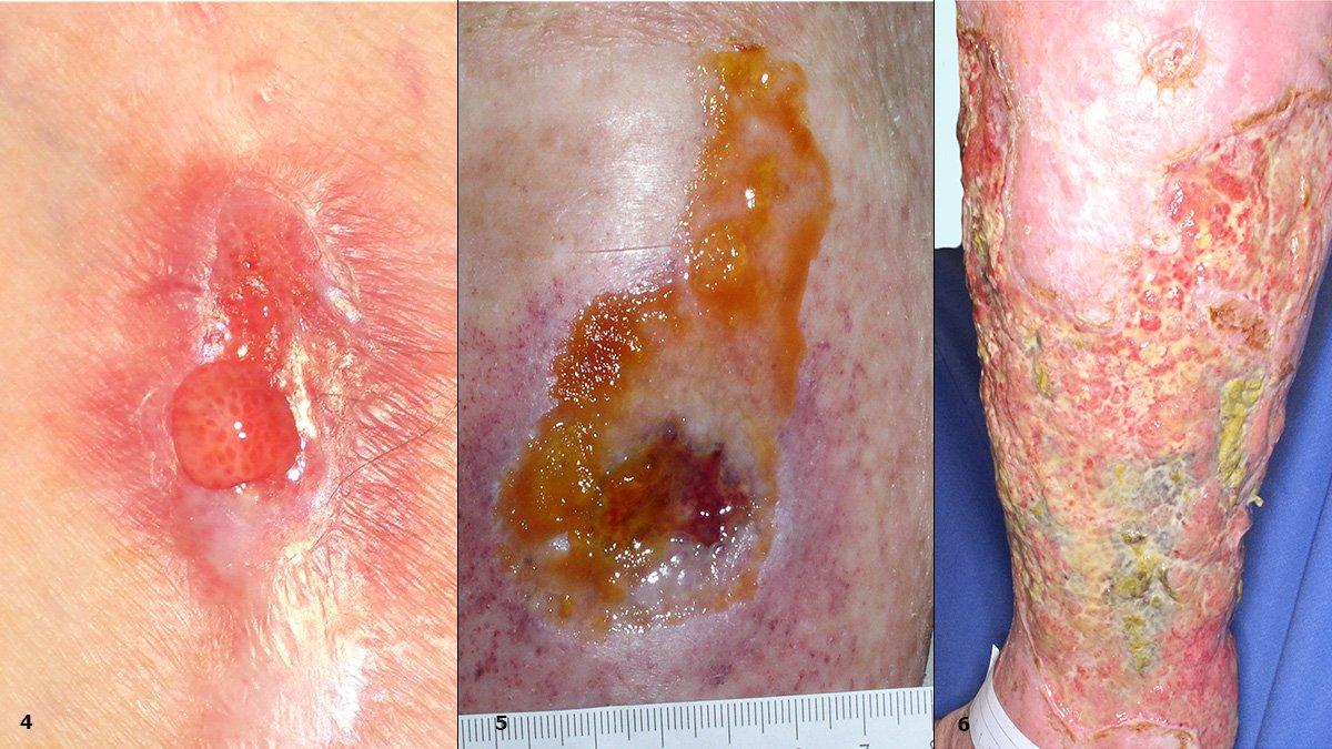 4: Seriöses Exsudat, Lyhmphfistel 5: Rückstände eines Hydrokolloidverbandes 6: Lokaler Wundinfekt durch Pseudomonas aeruginosa