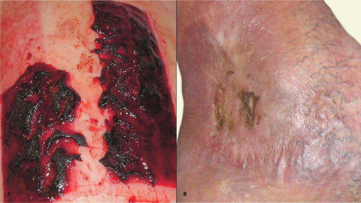 7: Blutiges Exsudat, Z.n. Spalthautentnahmestelle 8: Braune Rückstände von silberhaltiger Wundauflage im Gewebe