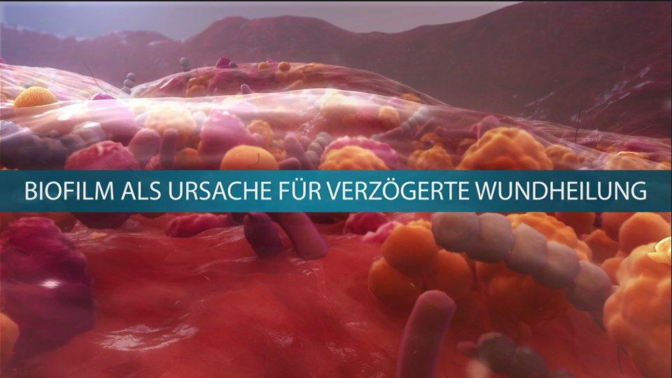 Biofilm: Der unsichtbare Feind der Wundheilung von chronischen Wunden